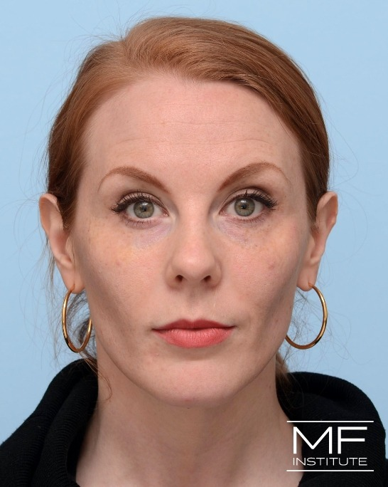 After Illumination 360˚  Midface Rejuvenation for under-eye circles and nonsurgical rhinoplasty