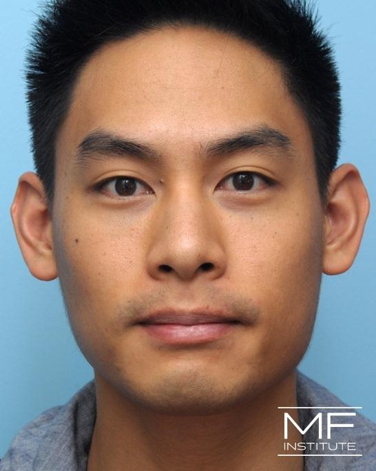 After Restylane treatment for dark under eye circles