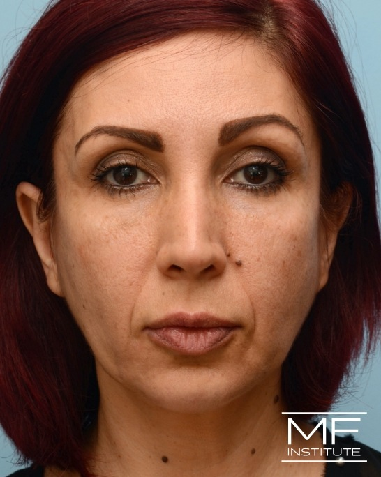 After nasolabial folds treatment with dermal fillers.