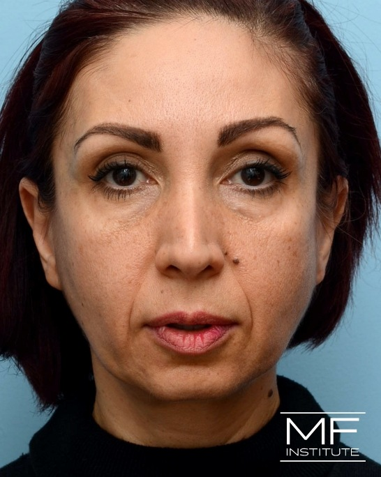 Before nasolabial folds treatment with dermal fillers.