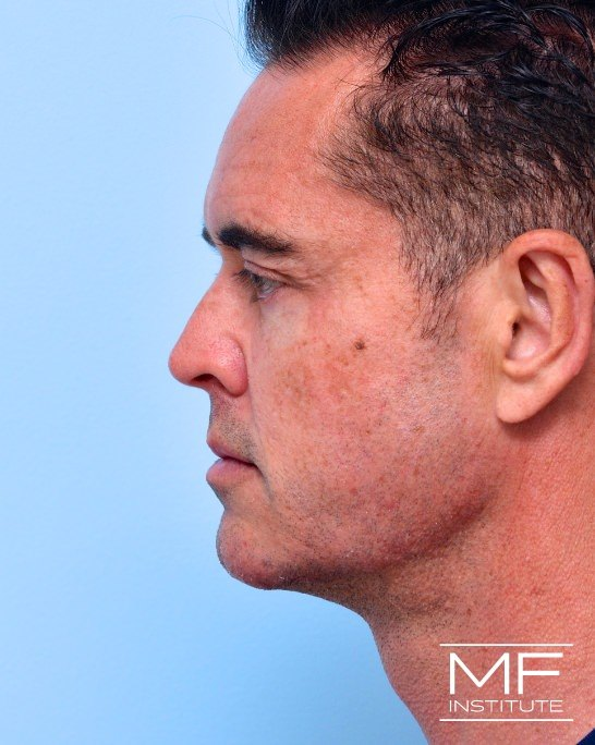 After male side view of nonsurgical facelift