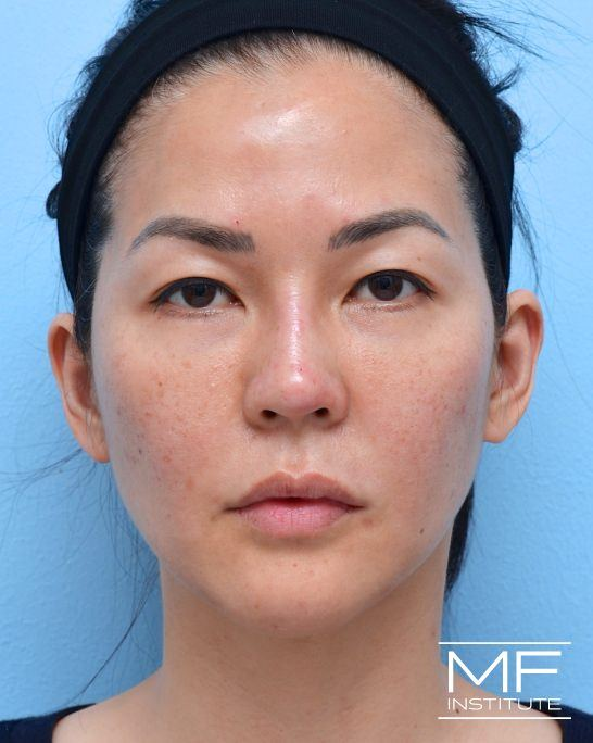 After female nonsurgical facelift