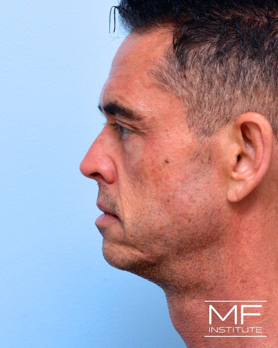 Before male side view of nonsurgical facelift