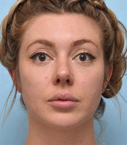 Oval Face Before