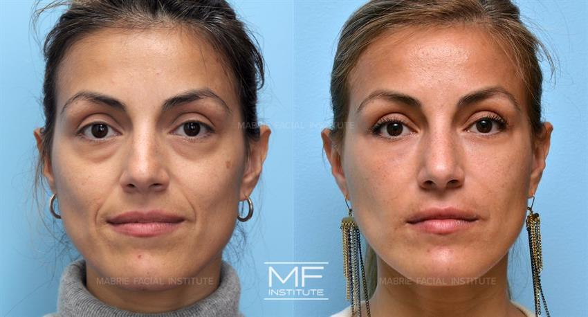 Dermal Filler Before and After Around the Mouth, i.e. for Nasolabial Folds (Bottom of the Sides of the Nose to the Lips), Also Known as Laughter Lines, dermalfillerbeforeandafter