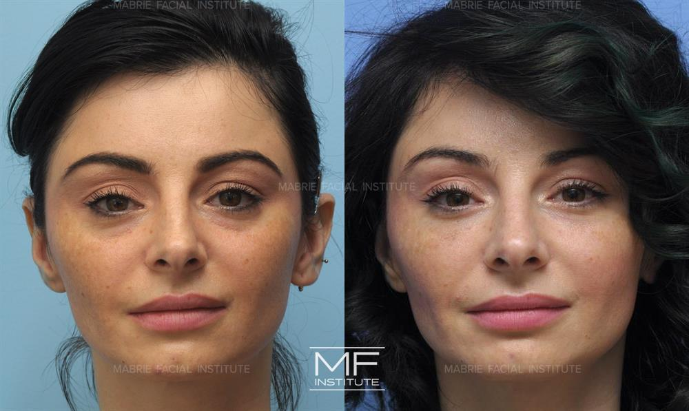 Eyes Before After Photos Patient 247 San Francisco Ca