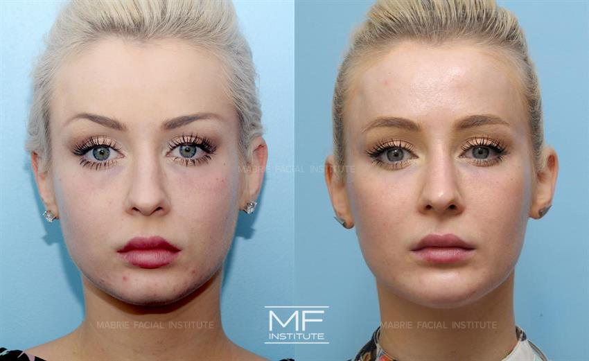 Lower Eyelid Rejuvenation Before After Photo Gallery San Francisco Ca Mabrie Facial Cosmetic Inc David C Mabrie Md Facs