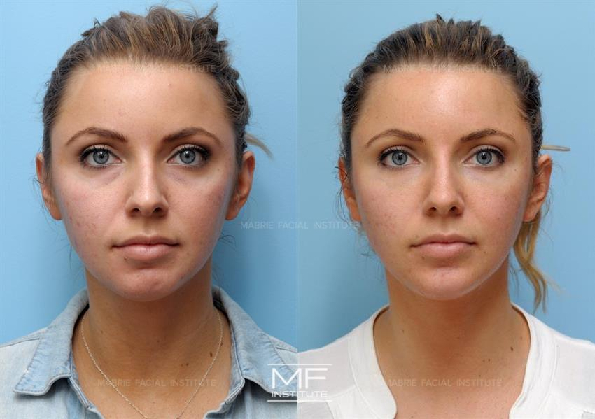 Mentalis Muscle Before & After Photo Gallery | San Francisco