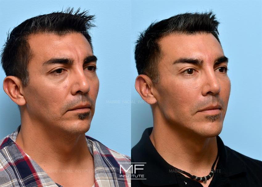 Nonsurgical Chin Augmentation, Neck Slimming & Jaw Contouring in San