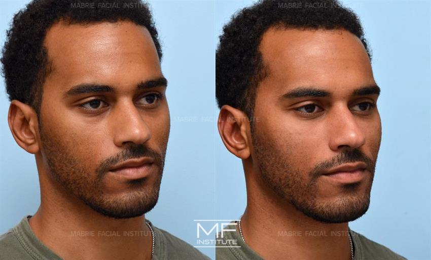 Facial Dermal Fillers Before After Photo Gallery San Francisco Ca Mabrie Facial Cosmetic Inc David C Mabrie Md Facs