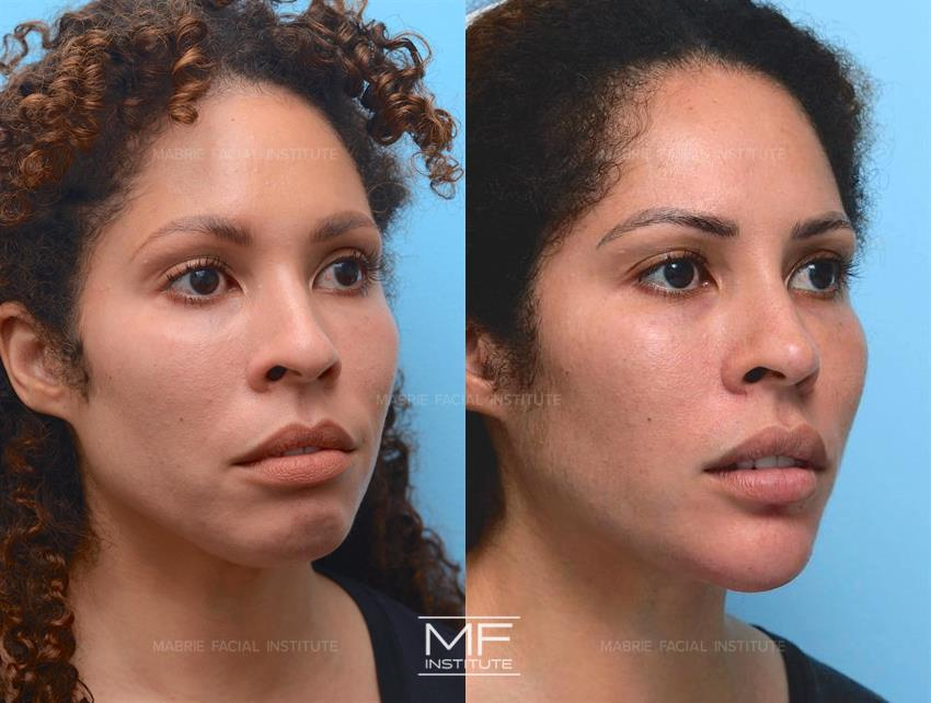 Mentalis Muscle Before & After Photo Gallery | San Francisco, CA