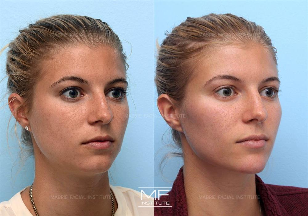 Chin Jaw Neck Before After Photos Patient 426 San Francisco Ca Mabrie Facial Cosmetic Inc David C Mabrie Md Facs