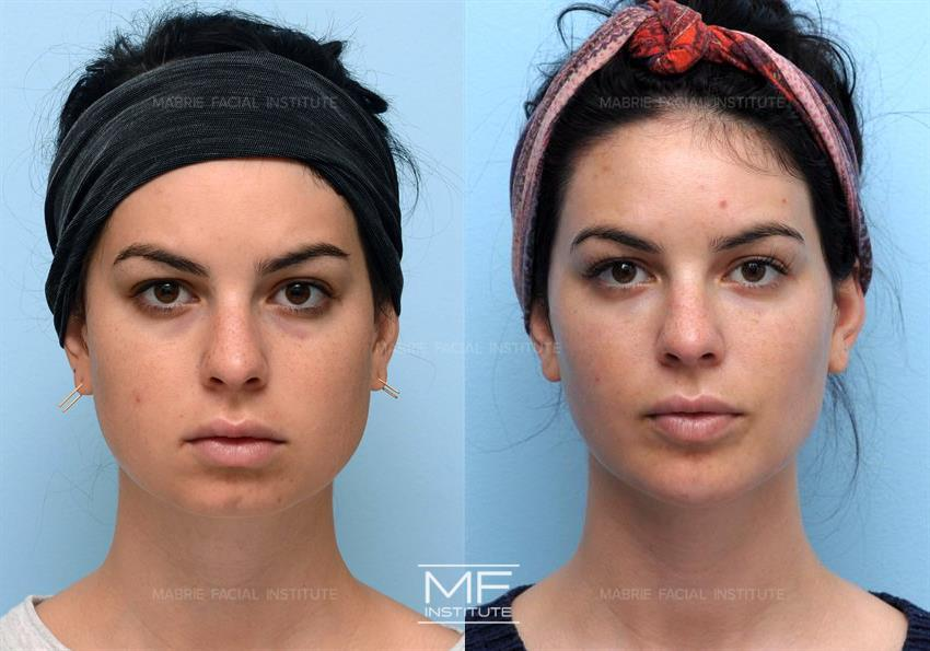 Nonsurgical Chin Augmentation, Neck Slimming & Jaw