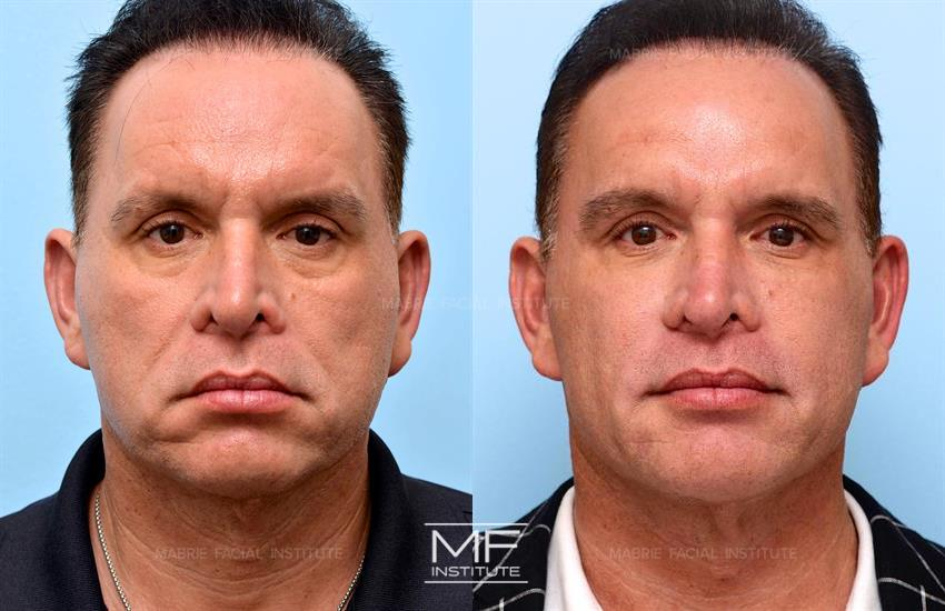 Radiesse Before After Photo Gallery San Francisco Ca Mabrie Facial Cosmetic Inc David C Mabrie Md Facs