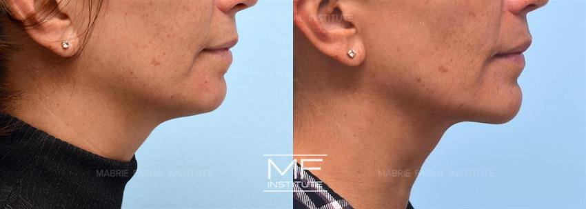 mentalis muscle before after photo gallery san francisco ca
