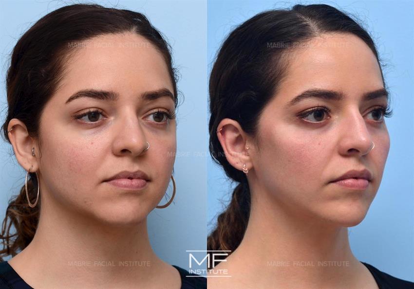 Dermal Fillers for Cheek Augmentation in San Francisco   Dr