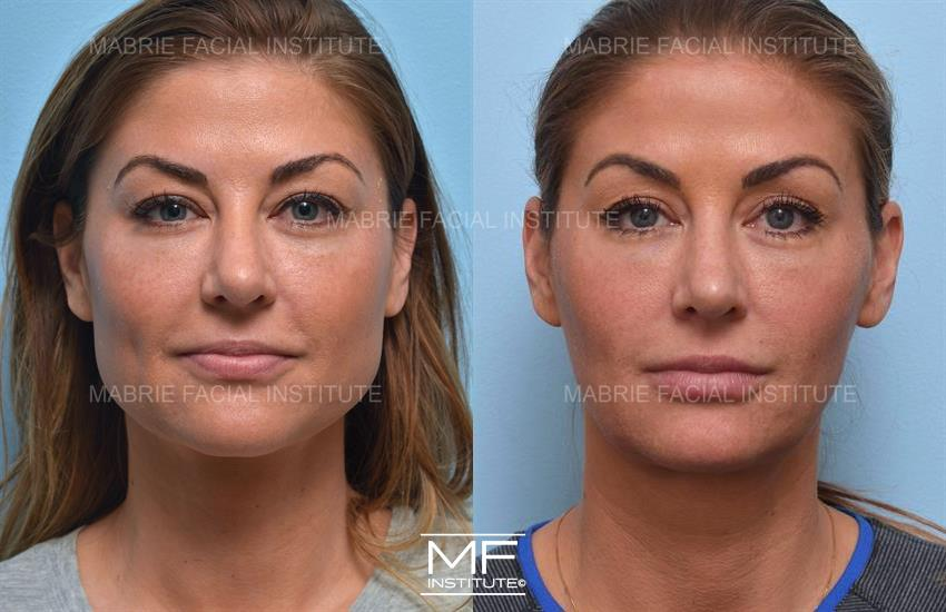 Masseters Before After Photo Gallery San Francisco Ca