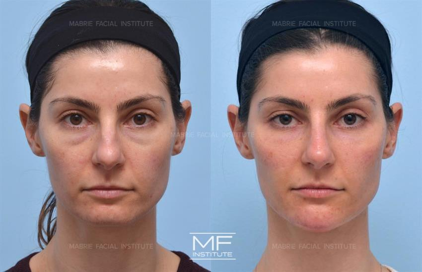 Facial Dermal Fillers Before & After Photo Gallery | San