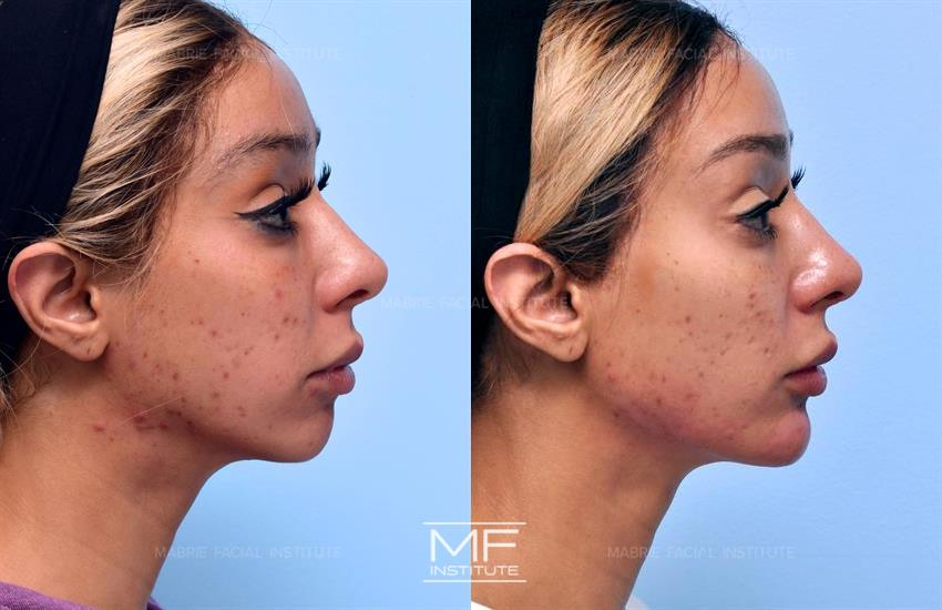 Juvederm Voluma Before & After Photo Gallery | San Francisco