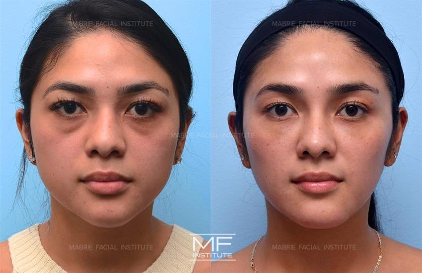 Masseters Before After Photo Gallery San Francisco Ca Mabrie Facial Cosmetic Inc David C Mabrie Md Facs